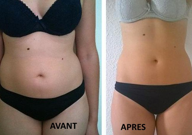 Résultats avant après de l'aquabiking sur vos abdominaux et votre tour de taille